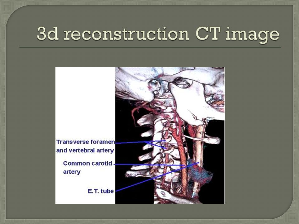Ct Neck Ppt Video Online Download
