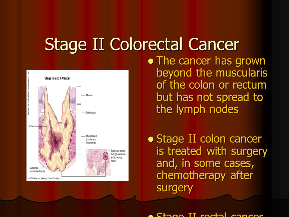 Interventions For Clients With Colorectal Cancer Ppt Video Online Download