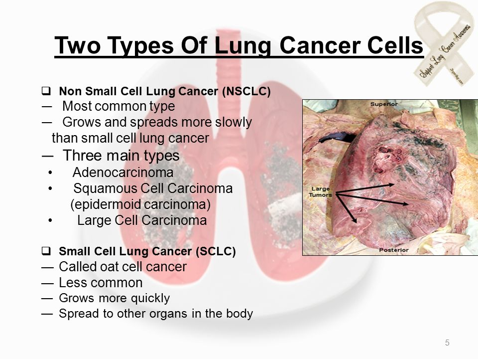 Two Types Of Lung Cancer Cells