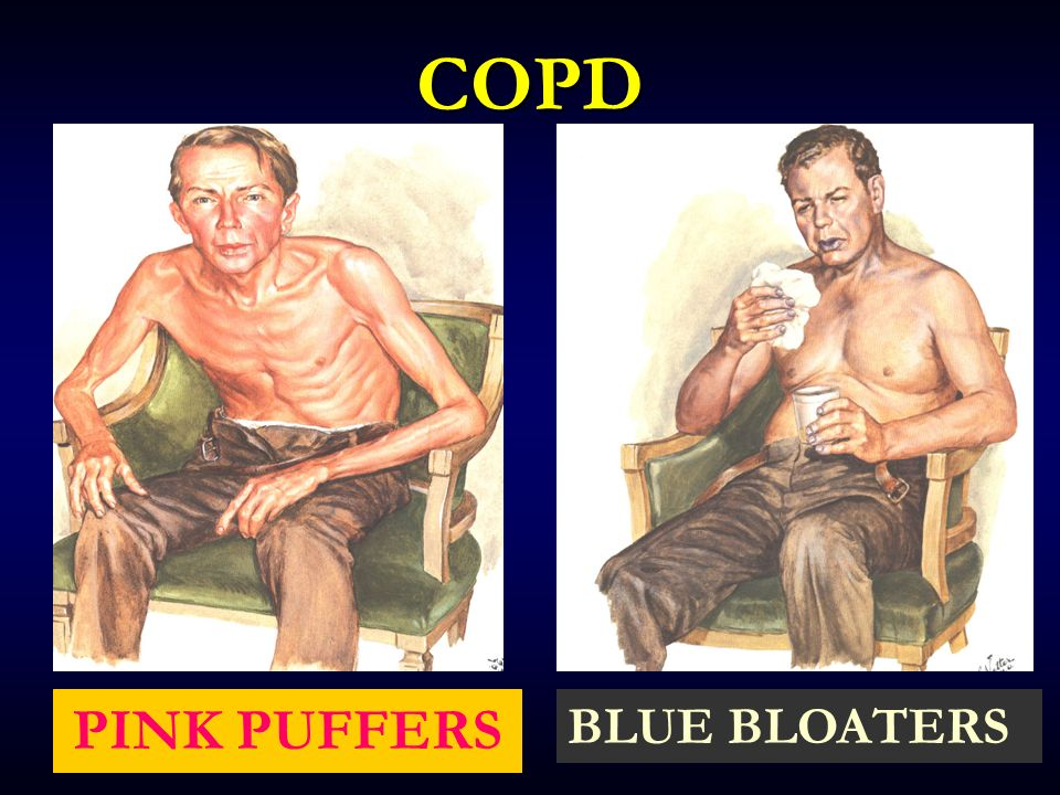 COPD PINK PUFFERS BLUE BLOATERS