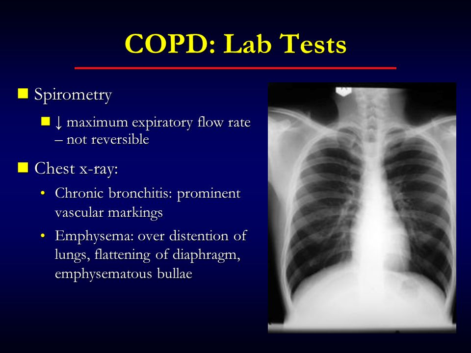 COPD: Lab Tests Spirometry Chest x-ray: