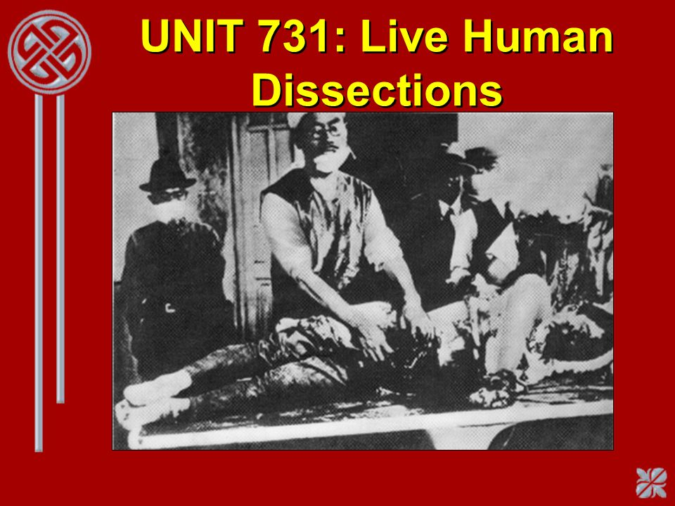 UNIT 731: Live Human Dissections