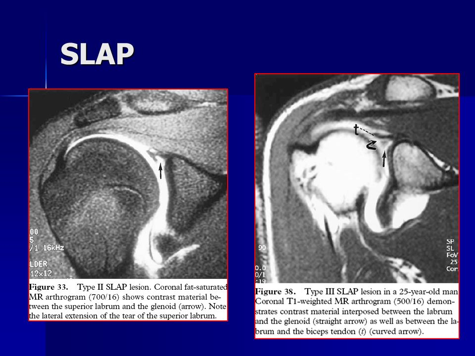 MR arthrography of the shoulder: Techniques and role in diagnosis of ...