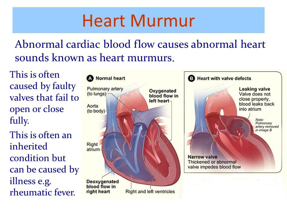 Blood Flow Heart Murmur Diagram Diy Enthusiasts Wiring Diagrams