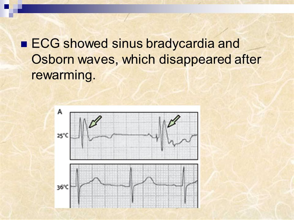 ECG showed sinus bradycardia and Osborn waves, which disappeared after rewarming.