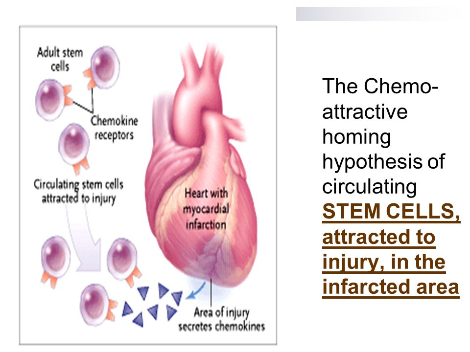 The Chemo-attractive homing hypothesis of circulating STEM CELLS, attracted to injury, in the infarcted area