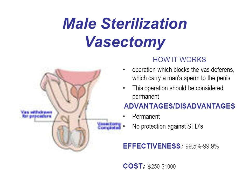 Male Sterilization Vasectomy