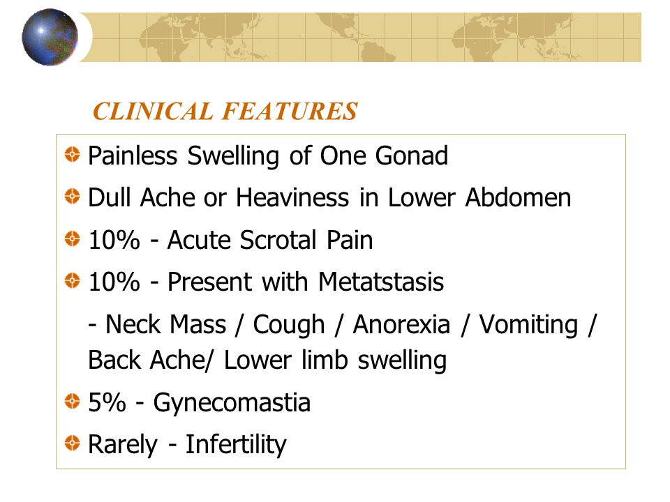 CLINICAL FEATURES Painless Swelling of One Gonad. Dull Ache or Heaviness in Lower Abdomen. 10% - Acute Scrotal Pain.