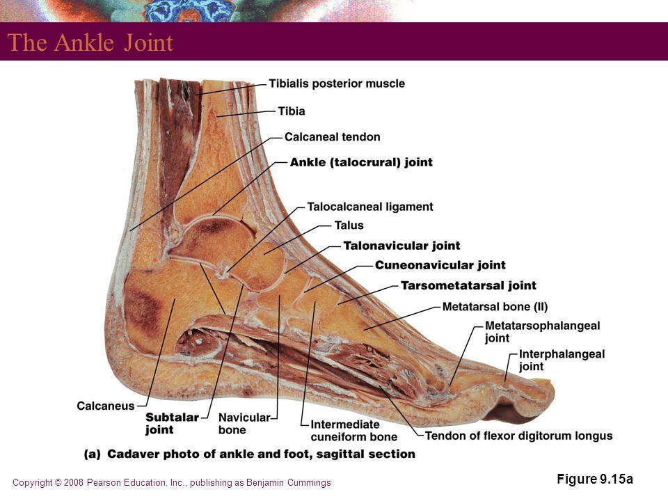 Part 5 Joints. - ppt video online download