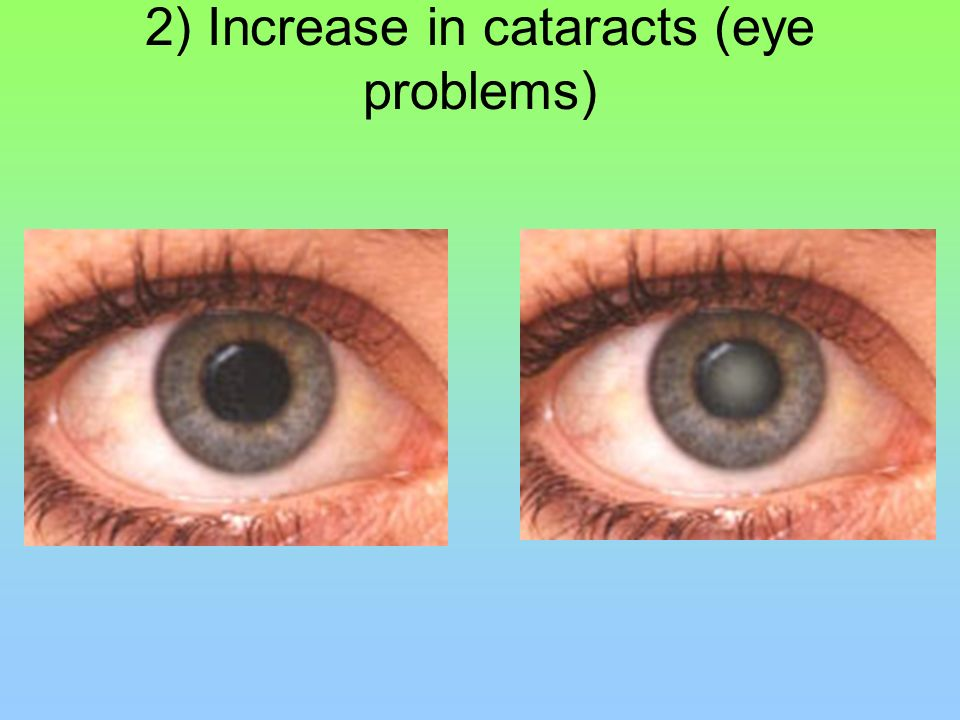 2) Increase in cataracts (eye problems)