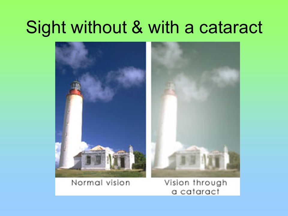 Sight without & with a cataract