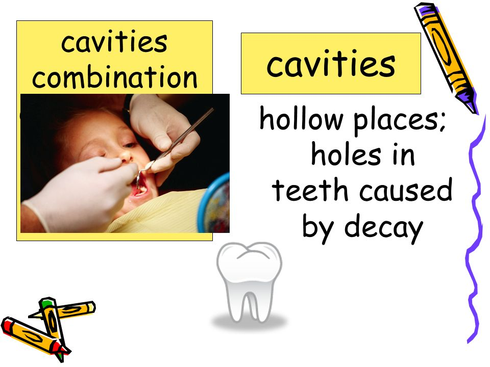 hollow places; holes in teeth caused by decay