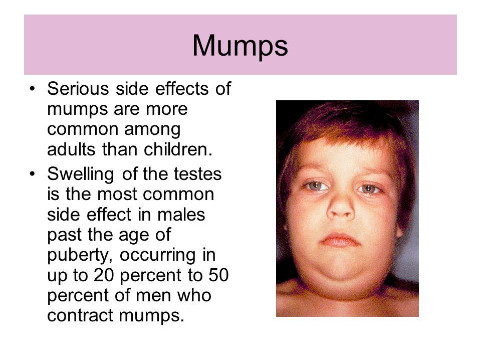 82 Mumps ...