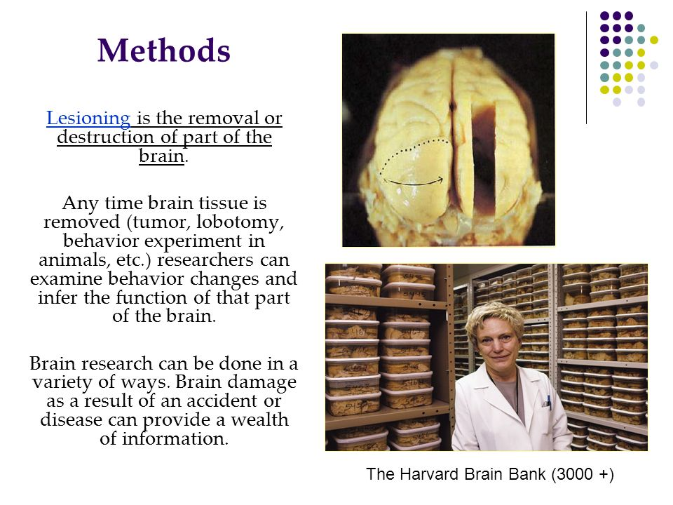 Lesioning is the removal or destruction of part of the brain.