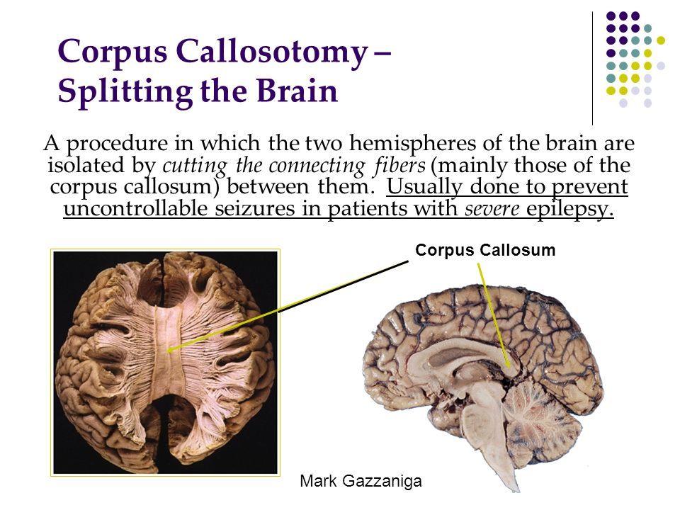 Corpus Callosotomy – Splitting the Brain