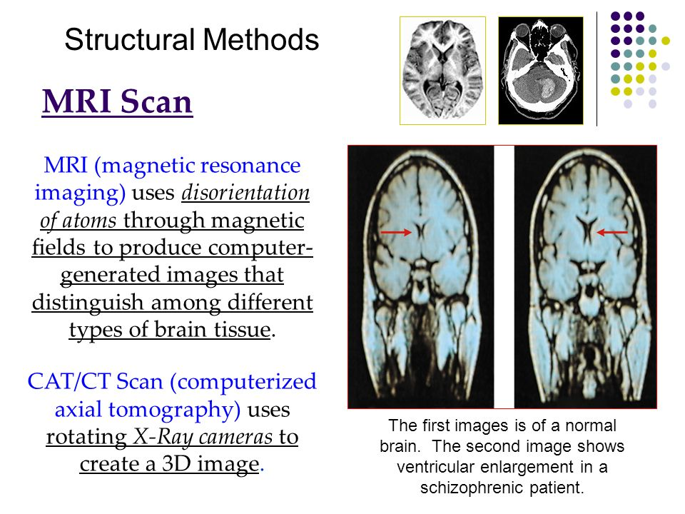 MRI Scan Structural Methods
