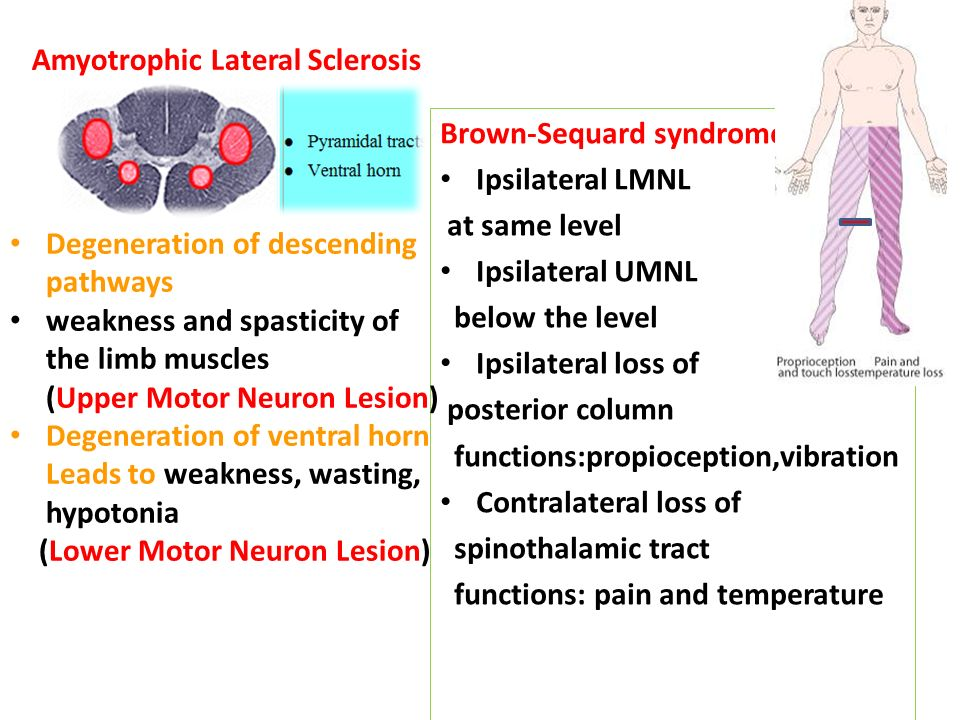 the fatal disease amyotrophic lateral sclerosis essay Amyotrophic lateral sclerosis (als) abstract: als is a disease in which the causes are unknown and the effects are devastating along with great physiological damage there is great mental damage that a patient that had als must endure.
