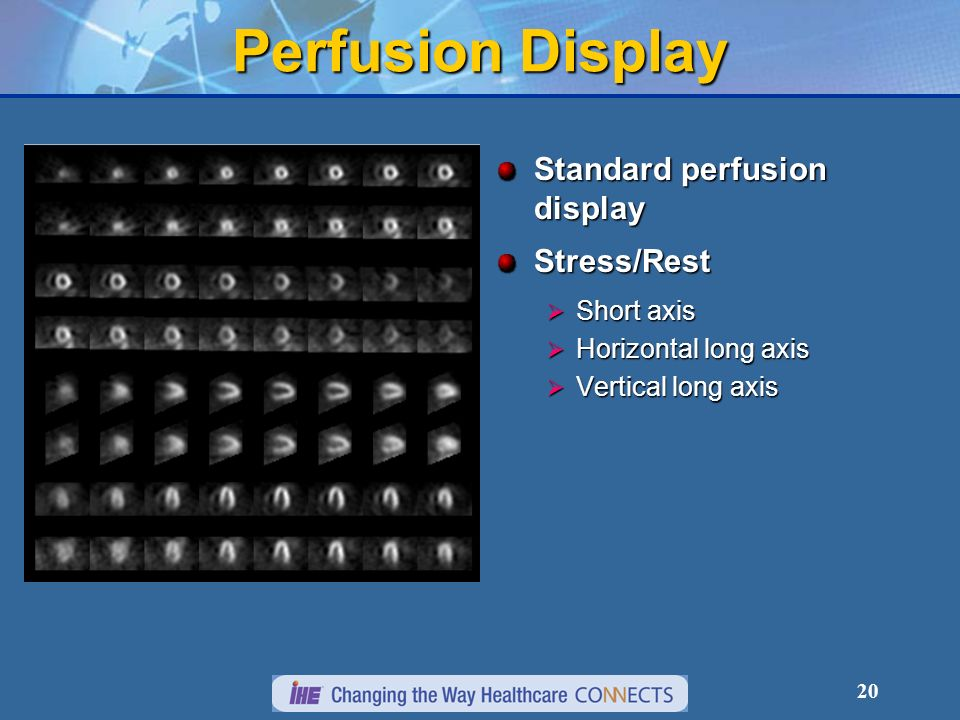Perfusion Display Standard perfusion display Stress/Rest Short axis