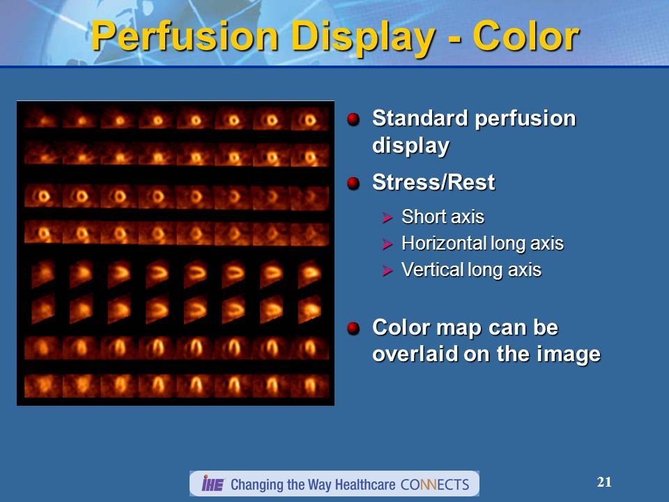 Perfusion Display - Color