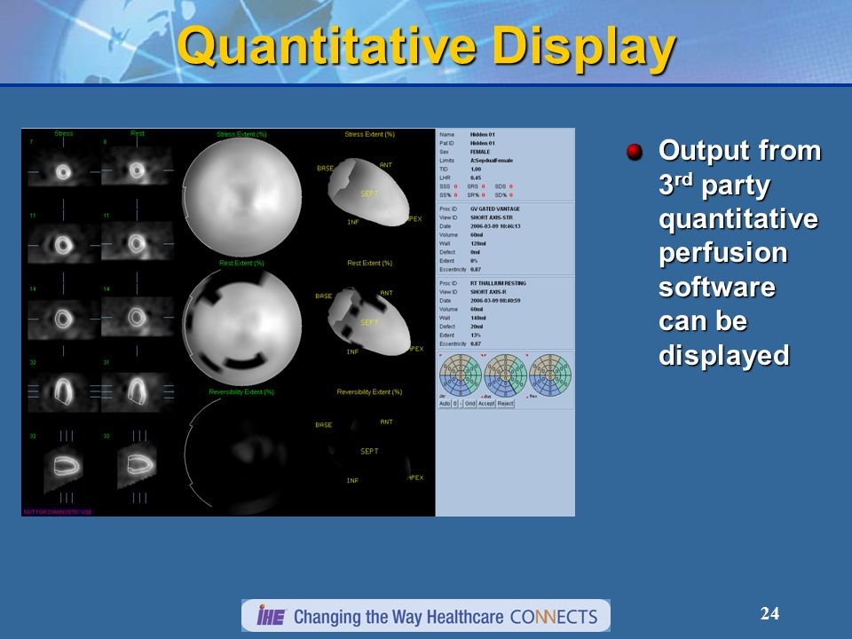 Quantitative Display Output from 3rd party quantitative perfusion software can be displayed