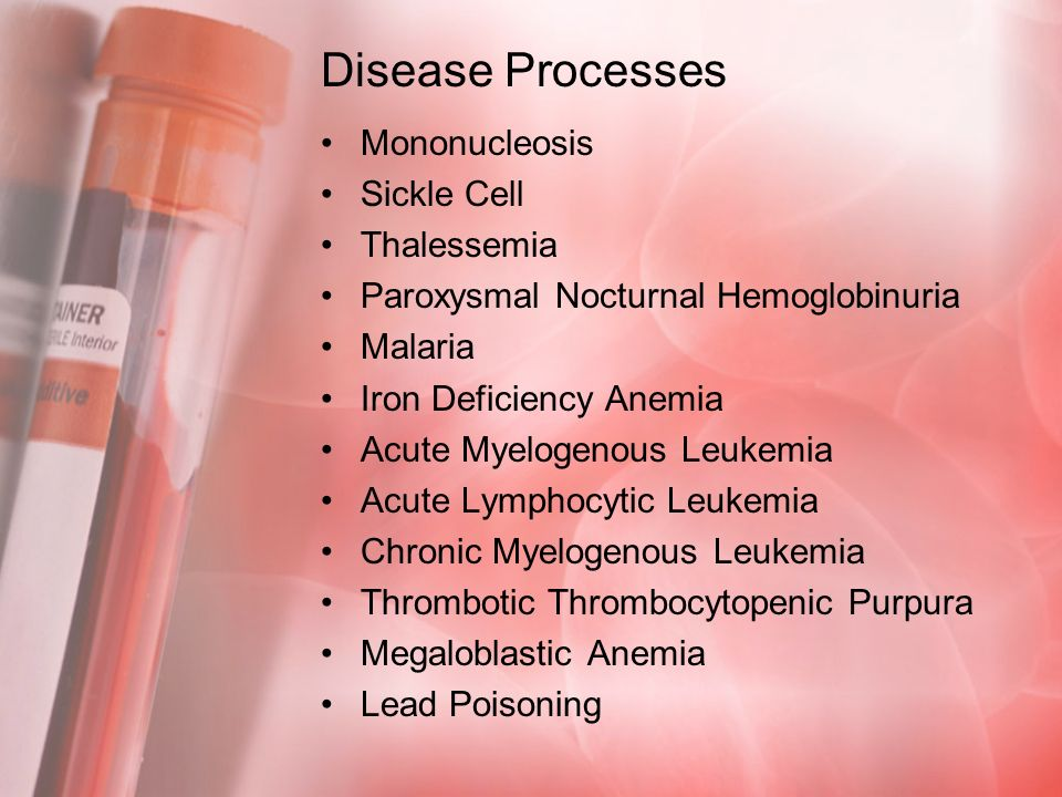 Disease Processes Mononucleosis Sickle Cell Thalessemia