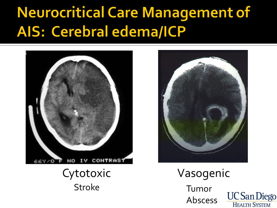 Neurocritical Care Management of Acute Ischemic Stroke - ppt