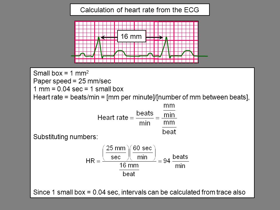 how to read ecg rate