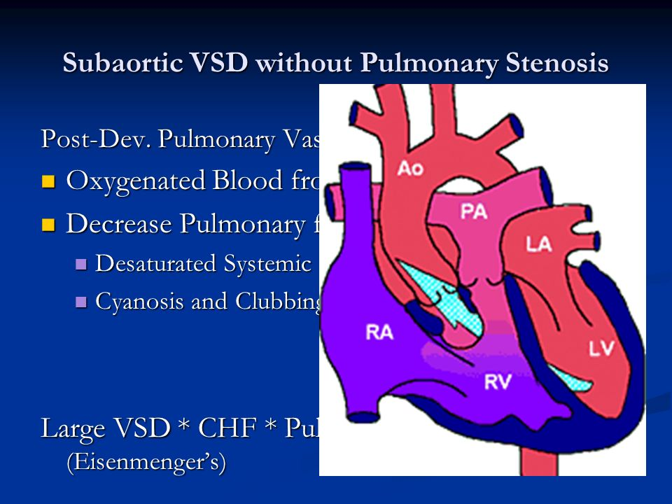 Double Outlet Right Ventricle Ppt Video Online Download