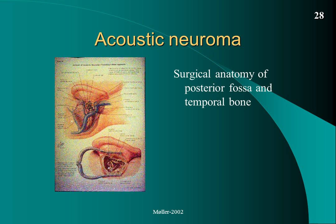Acoustic Neuroma Vestibular Schwannoma Diagnosis And Treatment