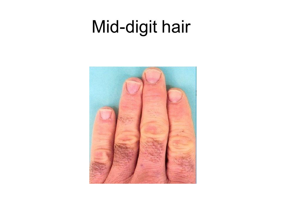 Mid-digit hair