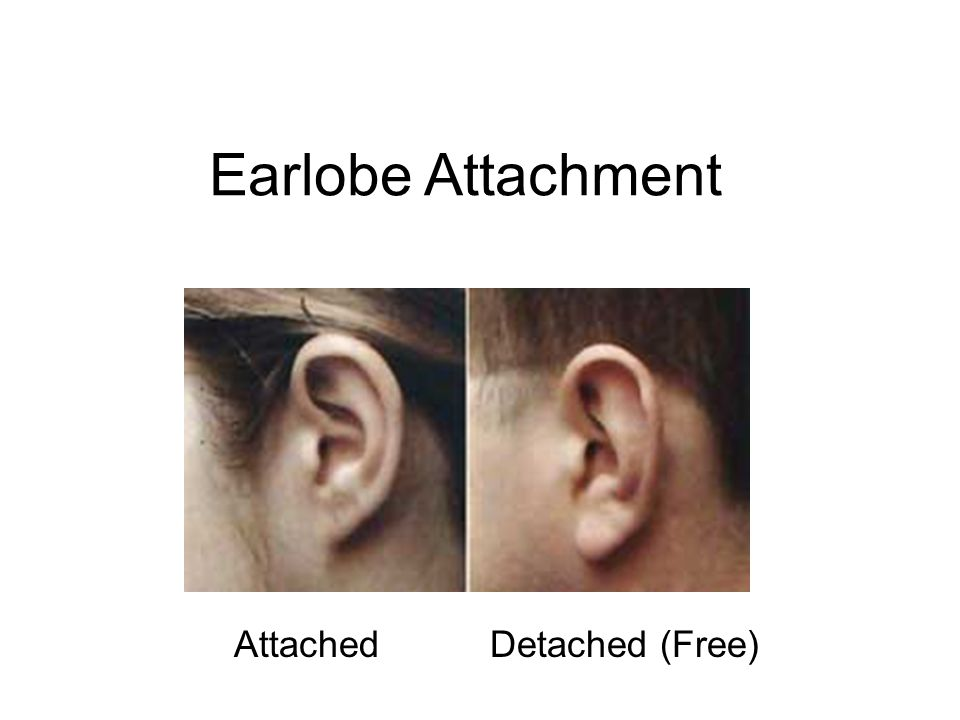 Earlobe Attachment Attached Detached (Free)