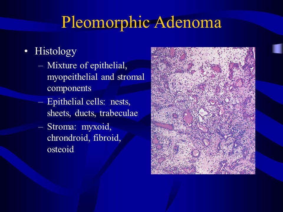 "Pleomorphic adenoma diagram, 2 thoughts on ""Prosztata adenoma szóda kezelése"""