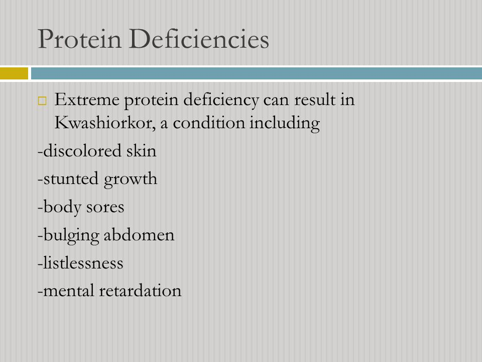 Protein Deficiencies Extreme protein deficiency can result in Kwashiorkor, a condition including. -discolored skin.