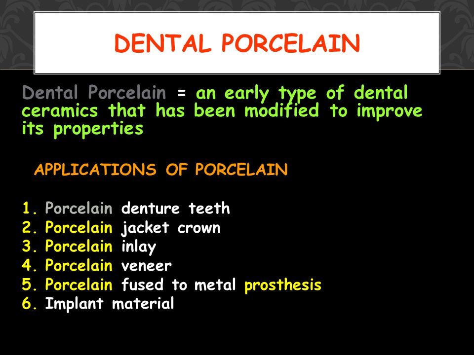 DENTAL CERAMICS Kuo-lung Tung ppt video online download
