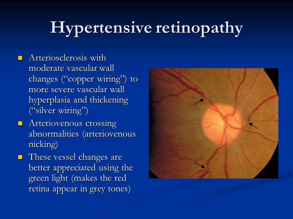 cooper wiring eyes library of wiring diagram u2022 rh jessascott co Silver Wiring Retina Anemia Retinopathy