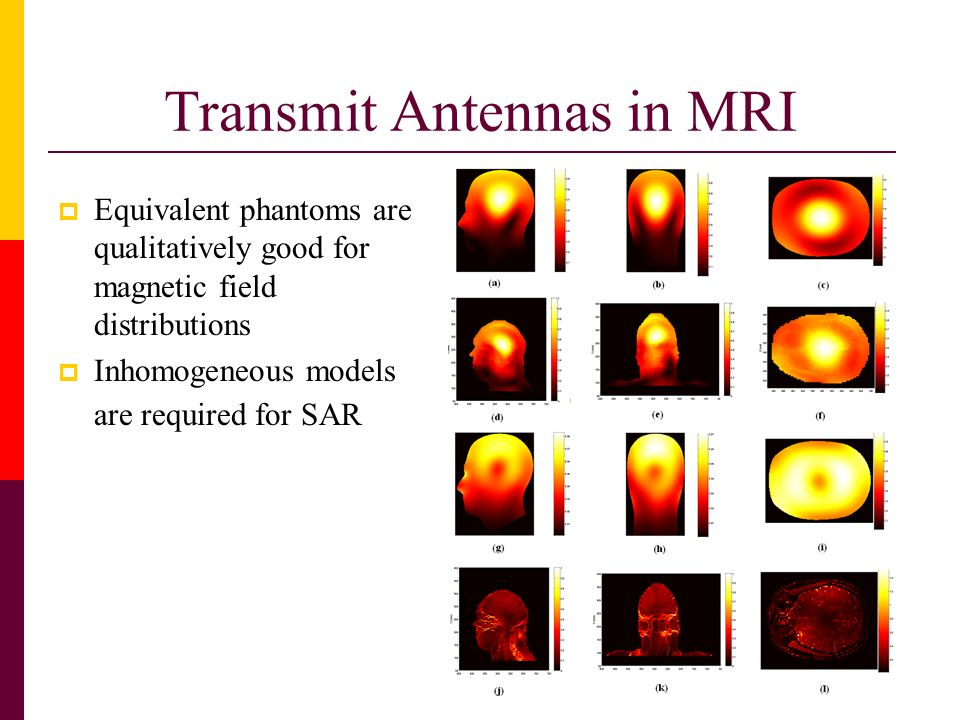 Transmit Antennas in MRI