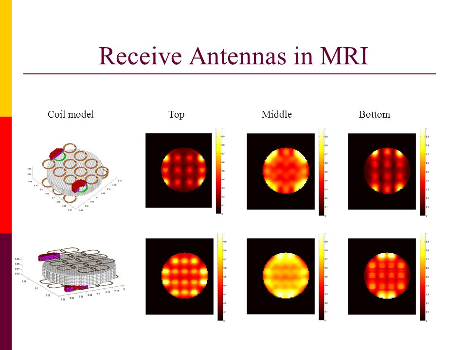 Receive Antennas in MRI