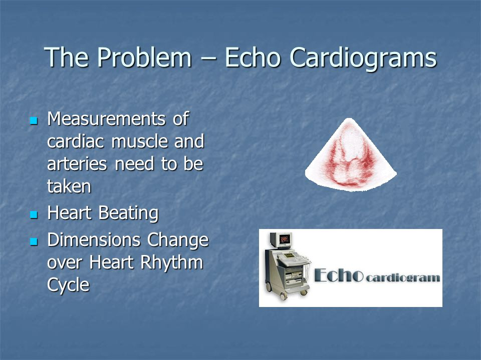 The Problem – Echo Cardiograms