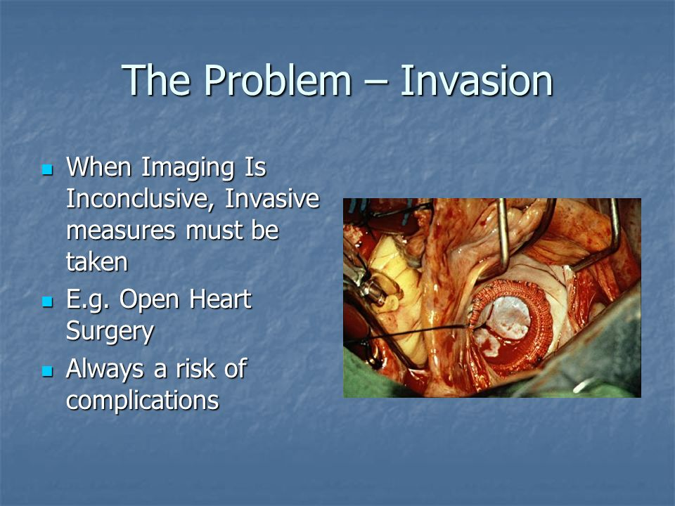 The Problem – Invasion When Imaging Is Inconclusive, Invasive measures must be taken. E.g. Open Heart Surgery.