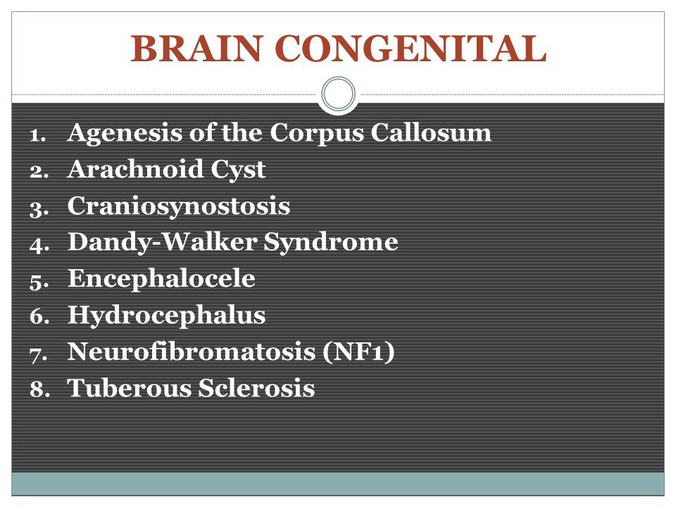 Brain Congenital Ppt Video Online Download