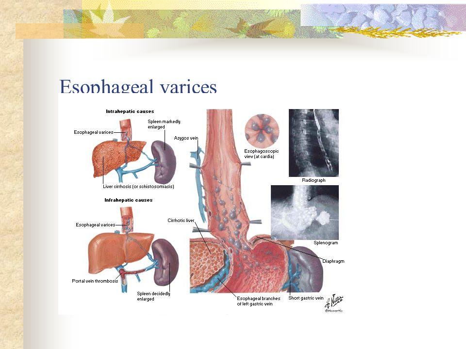 GI: Liver Hepatitis and Cirrhosis - ppt download
