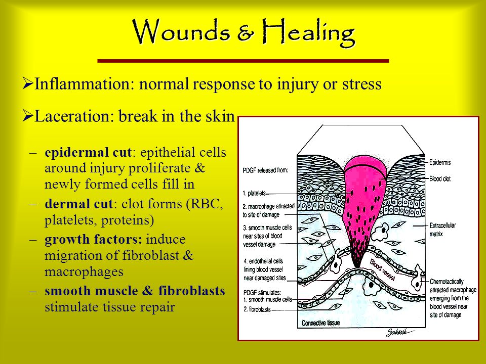 Wounds & Healing Inflammation: normal response to injury or stress