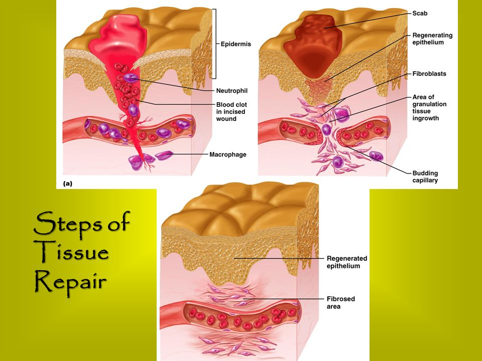 Steps of Tissue Repair