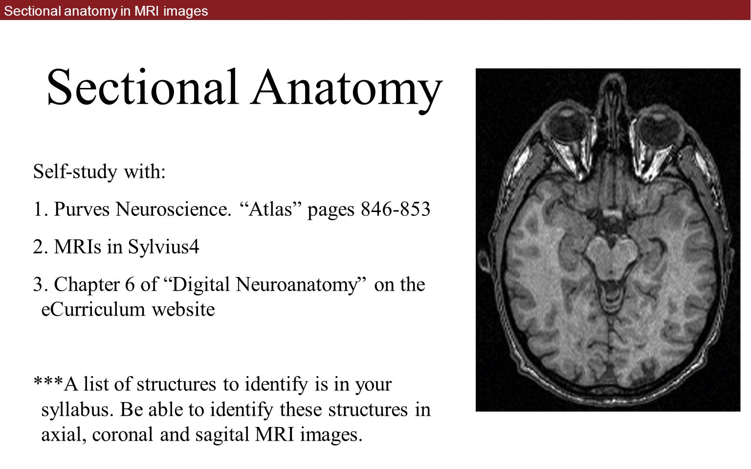Neuroradiology and Sectional Anatomy - ppt download