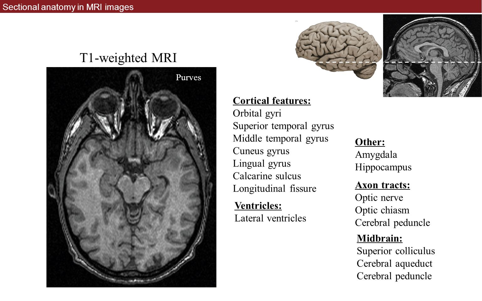Neuroradiology And Sectional Anatomy Ppt Download