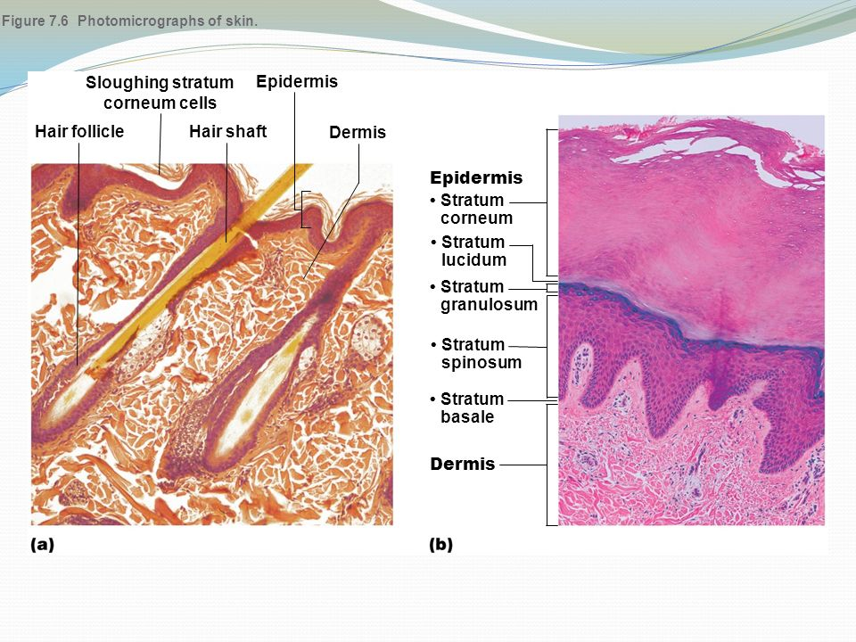Figure 7.6 Photomicrographs of skin.