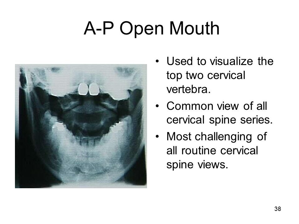 Radiologic Technology Basic Cervical Radiography Ppt Video Online. Ap Open Mouth Used To Visualize The Top Two Cervical Vertebra. Wiring. Mouth Diagram Labeled Radiograph At Scoala.co