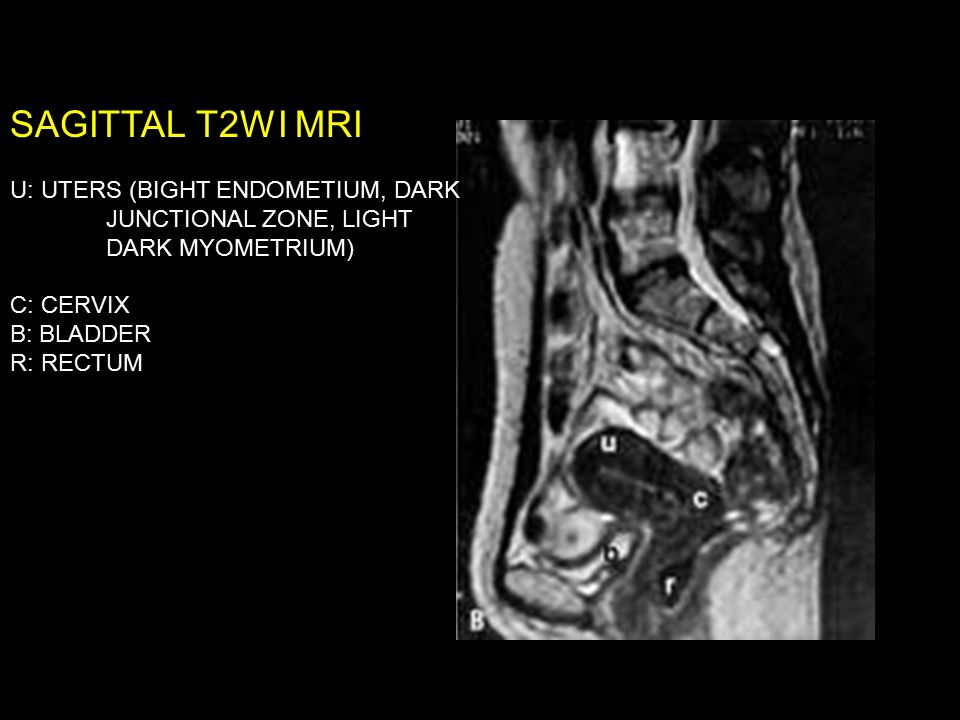 Female Reproductive System IMAGING - ppt video online download
