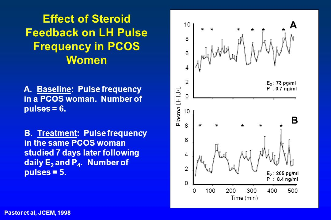 Effect of Steroid Feedback on LH Pulse Frequency in PCOS Women