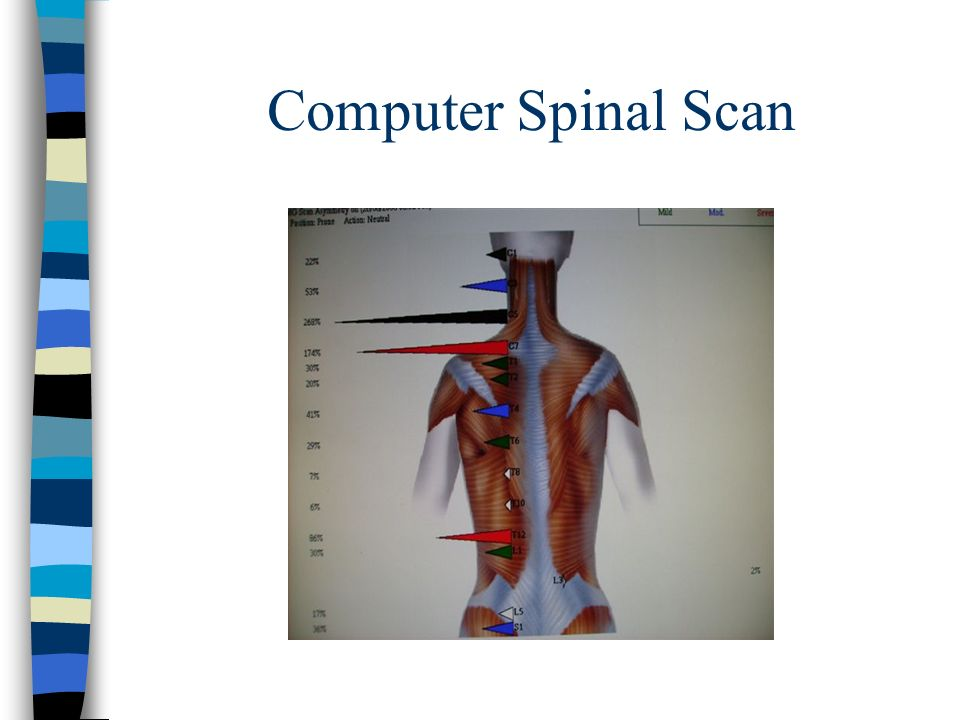 Computer Spinal Scan